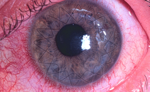 penetrating-keratoplasty