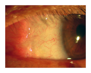 conjunctival-autograft-eye