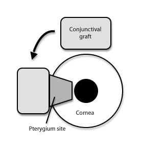 conjunctival-autograft-diagram