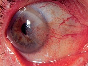 pterygium-eye